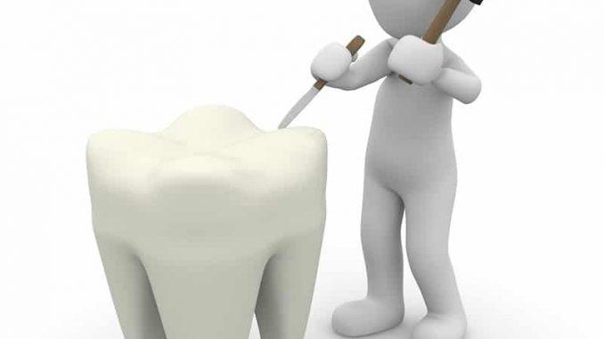 Das Lächeln - und somit auch die Zähne - sind das Aushängeschild eines jeden Menschen und fallen dem Gegenüber sofort auf. - Foto: pixabay.com/Peggy_Marco/CCO